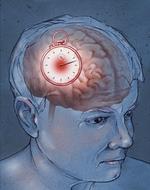 stroke-management